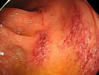 虚血性腸炎