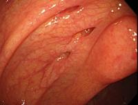 大腸憩室出血
