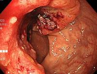 大腸の半分を占拠する大きな進行大腸がんです。
