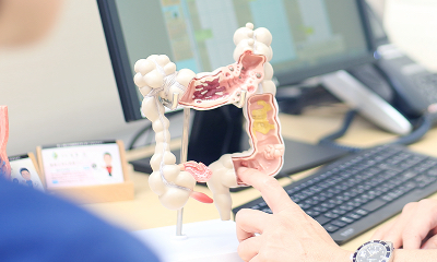 当院での⼤腸ポリープおよび早期⼤腸がんに対する内視鏡切除術の実際