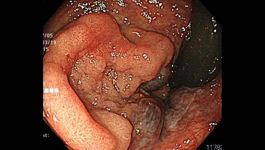 直腸の30mmの病変