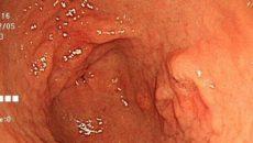 ピロリ菌除菌後に胃に起こる変化
