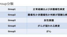よくある勘違い~グループ分類とステージ分類~