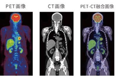 PET・CT画像