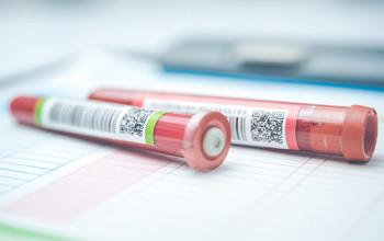 ペプシノゲン検査は直接的に「胃がん」を見つける検査ではないことをご存じですか?