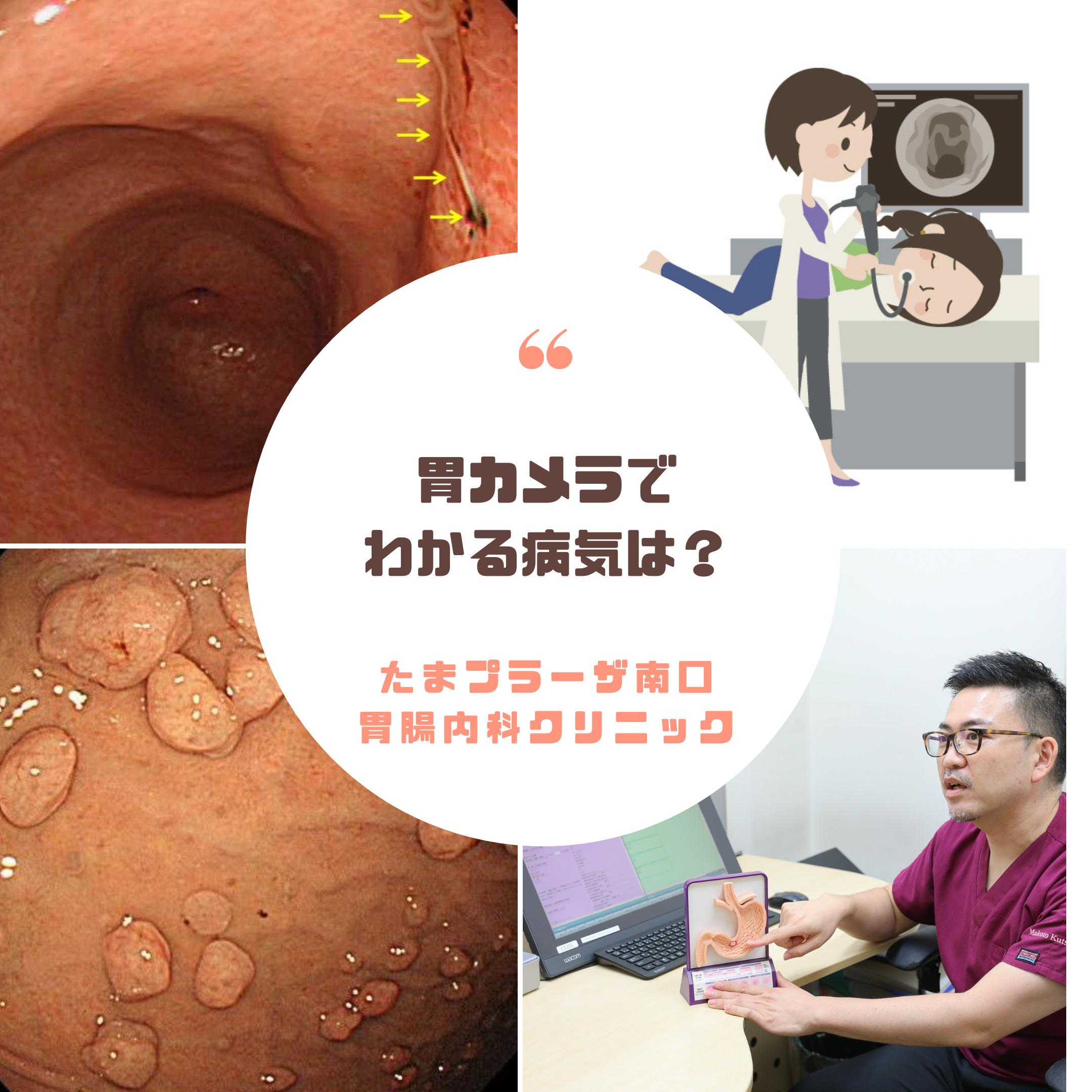 胃カメラで発見できる病気は?